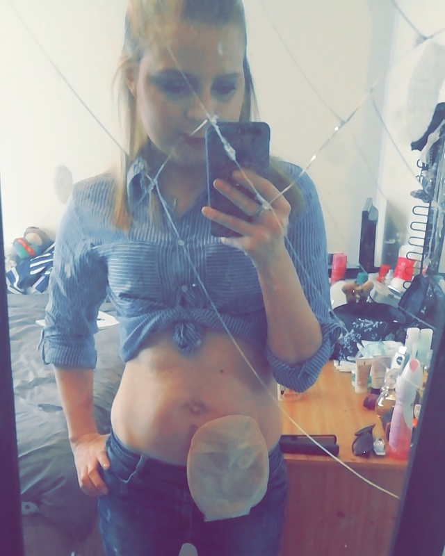 Natalie showing her stoma bag
